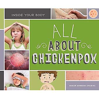 All About Chickenpox (Inside Your Body)