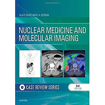 Nuclear Medicine and Molecular Imaging: Case Review Series (Case Review)