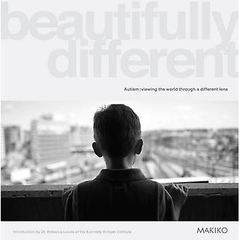Beautifully Different - Autism - Viewing the World Through a Different