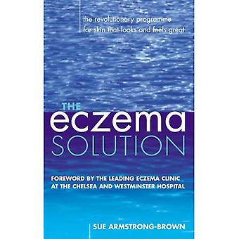 The Eczema Solution