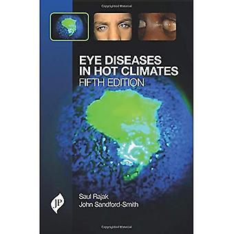 Malattie dell'occhio in climi caldi