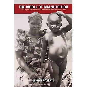 El enigma de la desnutrición: el arco largo de biomédica y las intervenciones de salud pública en Uganda (perspectivas en Salud Global)